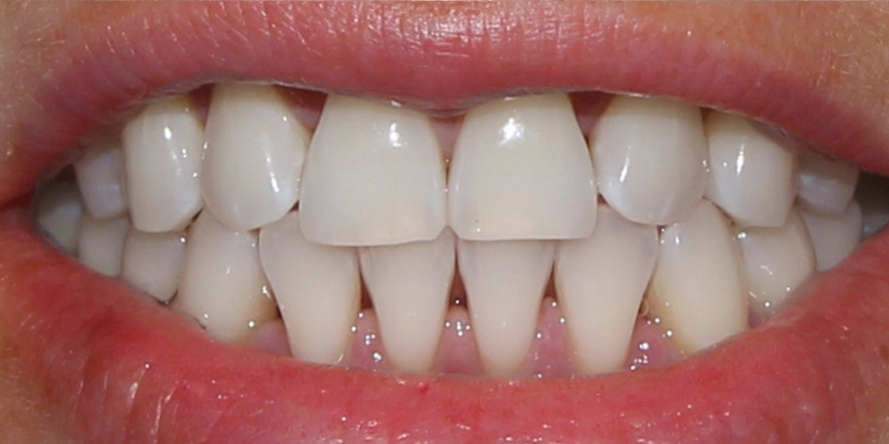Фото зубов после отбеливания. Результат отбеливания зубов системой Zoom-3