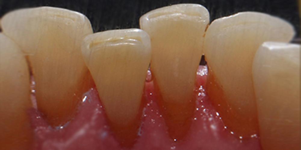 Профессиональная гигиена полости рта, результат до и после чистки
