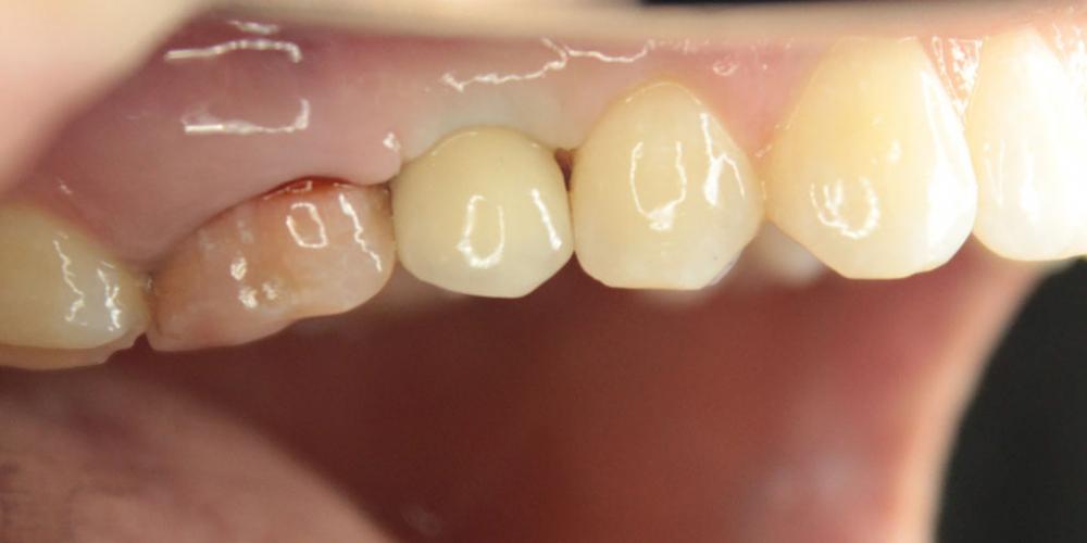 Восстановление зуба имплантация Osstem + протезирование м/к коронкой