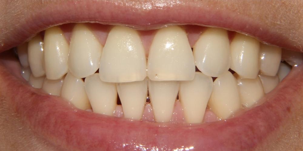 Фото до отбеливания зубов. Результат отбеливания зубов системой Zoom-3