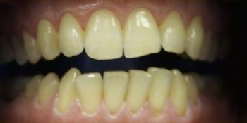 Отбеливание зубов последнего поколения ZOOM 3 фото до лечения
