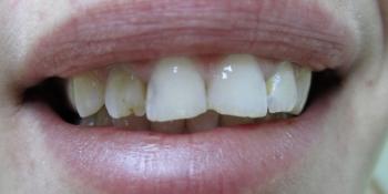 Реставрация фронтального зуба фото до лечения