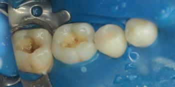 Результат лечения кариеса и постановки пломбы фото до лечения