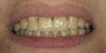 Восстановление двух зубов цельнокерамическими коронками Е-мах фото после лечения