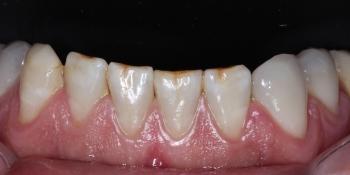 Установка виниров на нижние передние зубы фото до лечения
