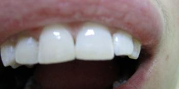 Реставрация фронтального зуба фото после лечения