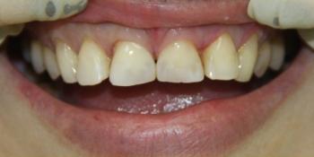 Эстетическая реставрация зубов фото после лечения