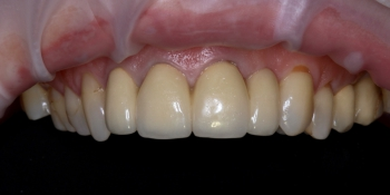 Коронки из диоксида циркония на передние зубы фото до лечения