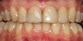 Отбеливание и сверхтонкие керамические виниры фото до лечения