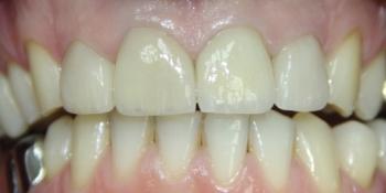 Восстановление зубов с помощью виниров и коронок фото после лечения