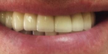 Установка 6 имплантов на верхнюю челюсть фото после лечения