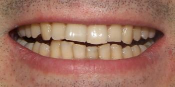 Результат протезирования керамическими винирами E-Max фото до лечения