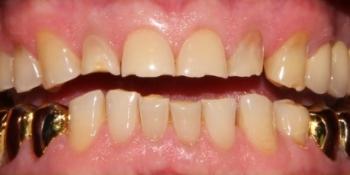 Полное восстановление зубов с помощью виниров и коронок фото до лечения