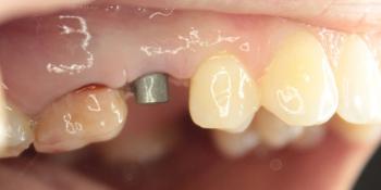 Восстановление зуба имплантация Osstem + протезирование м/к коронкой фото до лечения
