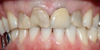 Восстановление зубов с помощью виниров и коронок фото до лечения