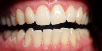 Отбеливание зубов последнего поколения ZOOM 3 фото после лечения