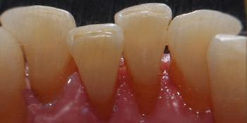 Профессиональная гигиена полости рта, результат до и после чистки фото после лечения