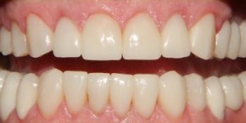 Полное восстановление зубов с помощью виниров и коронок фото после лечения
