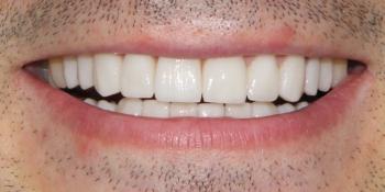 Результат протезирования керамическими винирами E-Max фото после лечения