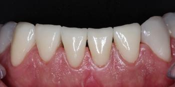 Установка виниров на нижние передние зубы фото после лечения
