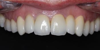 Коронки из диоксида циркония на передние зубы фото после лечения