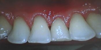 Профессиональная гигиена полости рта фото после лечения