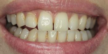 Результат отбеливания зубов ZOOM-4 фото до лечения