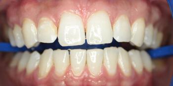 Результат отбеливания зубов ZOOM-4 фото после лечения