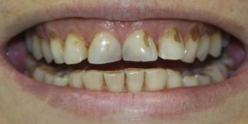 Эстетическая реставрация зубов фото до лечения